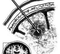 Биопсия головного мозга
