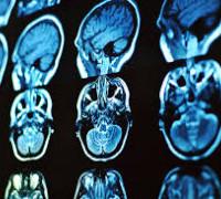 Прием нейрохирурга