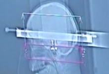 Стереотаксическая биопсия опухоли головного мозга